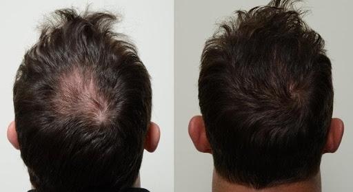 Dầu gội thảo mộc Cỏ Mực Mộc Nhu giúp tóc đen dày