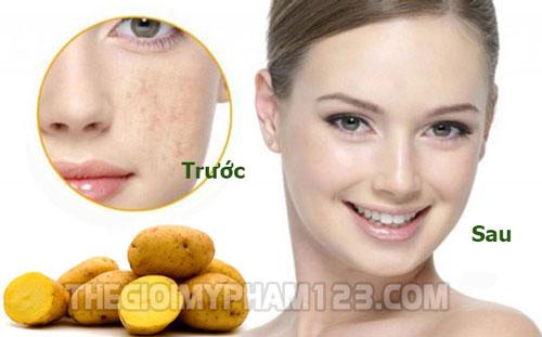 cách trị nám da mặt tại nhà bằng khoai tây