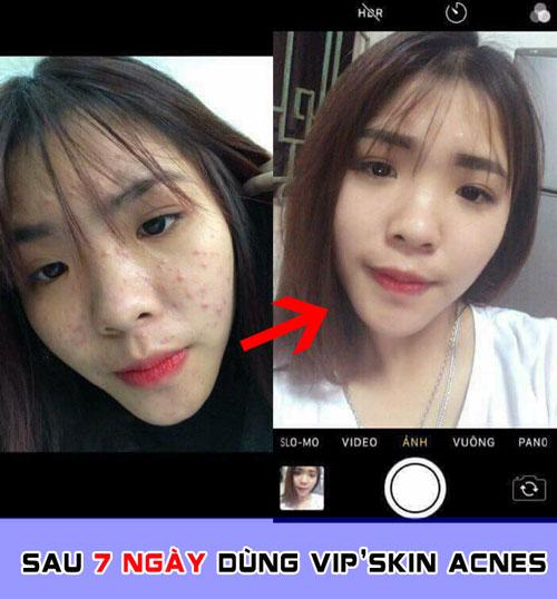kết quả sau khi dùng kem trị mụn vip'skin acnes
