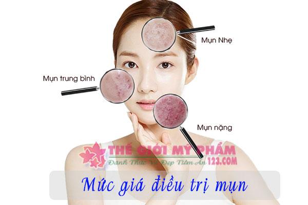 kem trị mụn vipskin acnes giá bao nhiêu