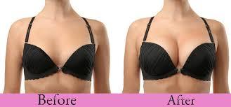 review khách hàng về breast queen