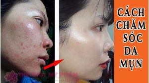 cách chăm sóc da bị mụn và vết thâm