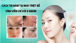 cách trị nám da mặt tại nhà